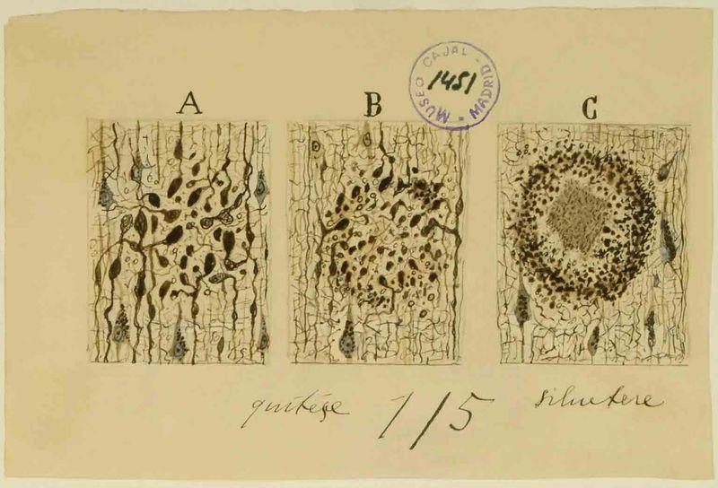 Alzeimer Plaque_Cajal